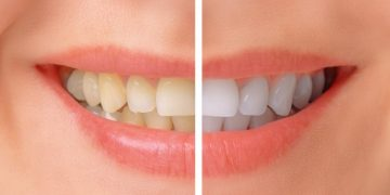 Teeth Whitening – Facts