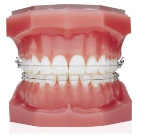 Ceramic-braces-treatment-vadodara