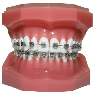 Orthodontic-metal-braces