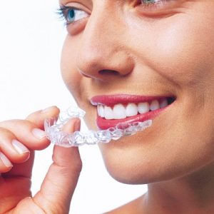 invisalign-invisible-braces-vadodara