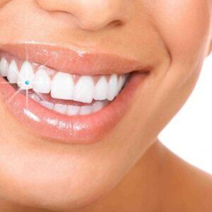 Swarovski Tooth Diamond