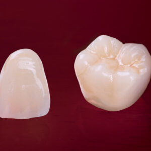 Ceramic Crown / Cap